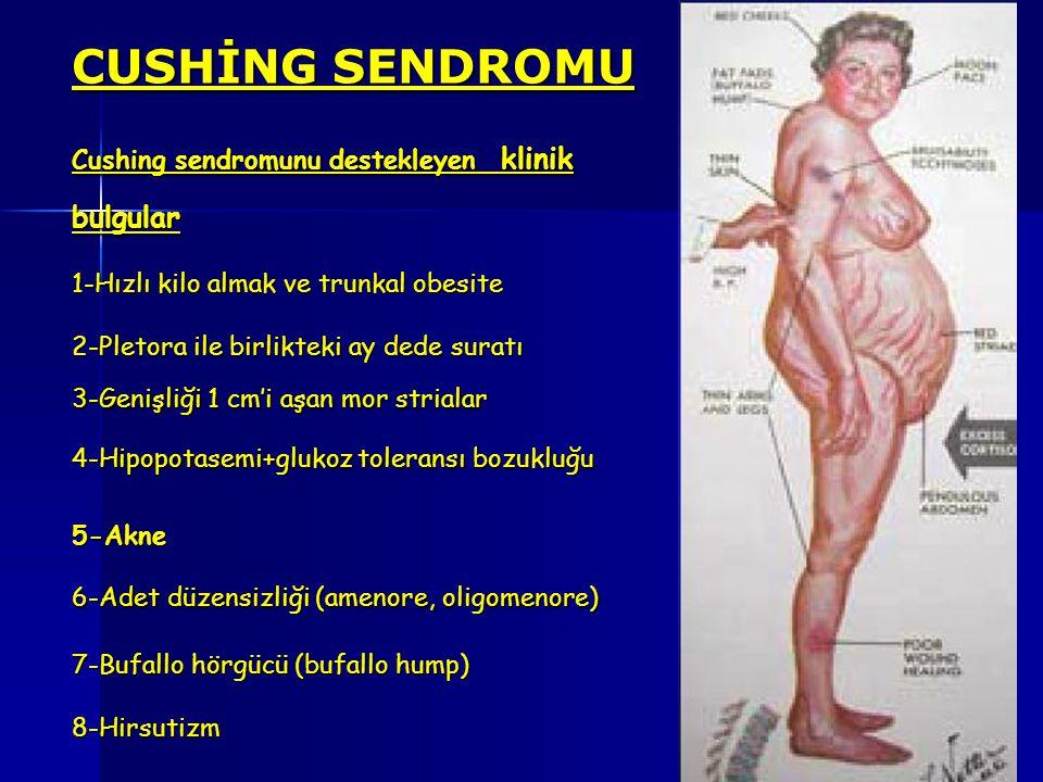 CUSHİNG SENDROMU Cushing sendromunu destekleyen klinik bulgular 1-Hızlı kilo almak ve trunkal obesite 2-Pletora ile birlikteki ay dede suratı 3-Genişl