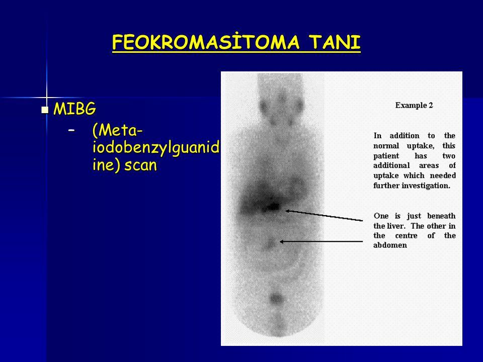 FEOKROMASİTOMA TANI MIBG MIBG –(Meta- iodobenzylguanid ine) scan