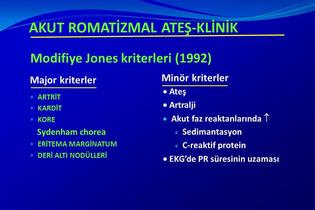 Modifiye Jones kriterleri (1992) Minör kriterler ARTRİT KARDİT KORE Sydenham chorea ERİTEMA MARGİNATUM DERİ ALTI NODÜLLERİ  Ateş  Artralji  Akut fa