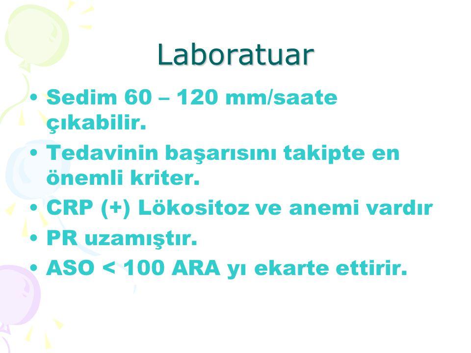 Laboratuar Sedim 60 – 120 mm/saate çıkabilir. Tedavinin başarısını takipte en önemli kriter. CRP (+) Lökositoz ve anemi vardır PR uzamıştır. ASO < 100