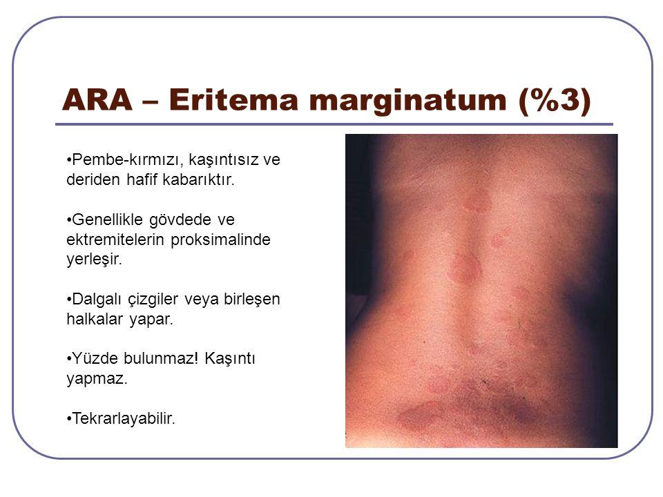 ARA – Eritema marginatum (%3) Pembe-kırmızı, kaşıntısız ve deriden hafif kabarıktır. Genellikle gövdede ve ektremitelerin proksimalinde yerleşir. Dalg