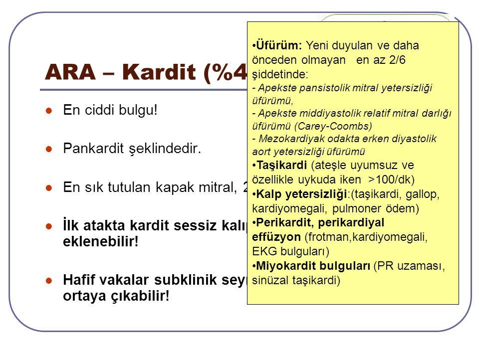ARA – Kardit (%40-80) En ciddi bulgu! Pankardit şeklindedir. En sık tutulan kapak mitral, 2. sıklıkta aort kapağı İlk atakta kardit sessiz kalıp sonra