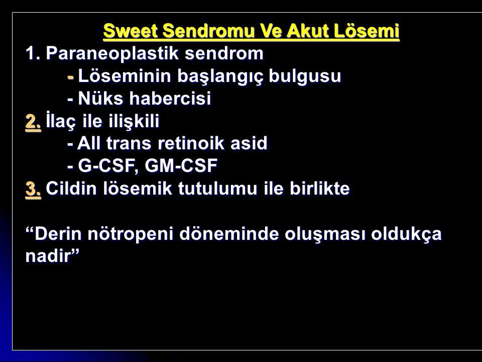 Sweet Sendromu Ve Akut Lösemi 1. Paraneoplastik sendrom - Löseminin başlangıç bulgusu - Löseminin başlangıç bulgusu - Nüks habercisi - Nüks habercisi