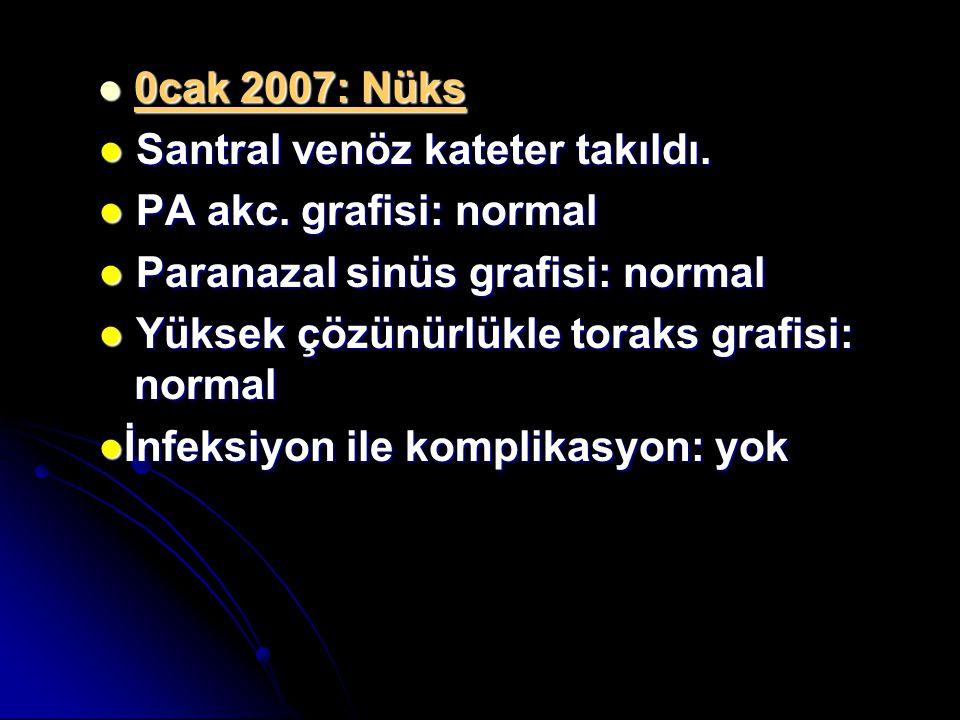 0cak 2007: Nüks 0cak 2007: Nüks ● Santral venöz kateter takıldı. ● PA akc. grafisi: normal ● Paranazal sinüs grafisi: normal ● Yüksek çözünürlükle tor