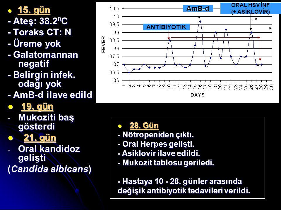 ● 15. gün - Ateş: 38.2 0 C - Toraks CT: N - Üreme yok - Galatomannan negatif - Belirgin infek. odağı yok - AmB-d ilave edildi ● 19. gün - Mukoziti baş