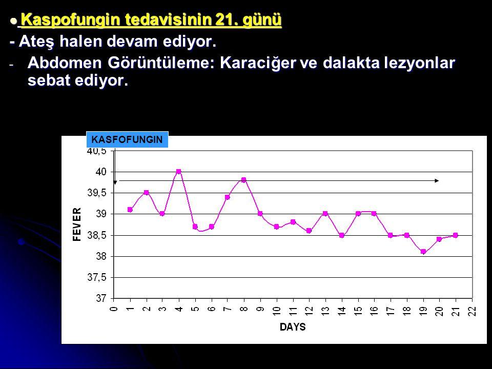 ● Kaspofungin tedavisinin 21. günü - Ateş halen devam ediyor. - Abdomen Görüntüleme: Karaciğer ve dalakta lezyonlar sebat ediyor. KASFOFUNGIN