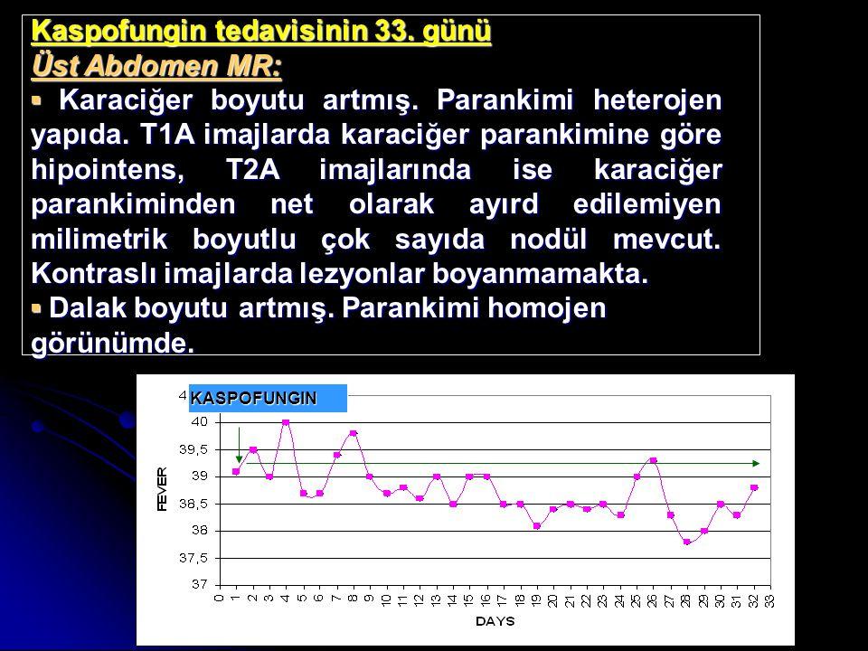 Kaspofungin tedavisinin 33. günü Üst Abdomen MR: ▪Karaciğer boyutu artmış. Parankimi heterojen yapıda. T1A imajlarda karaciğer parankimine göre hipoin