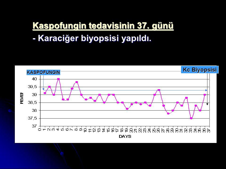 Kaspofungin tedavisinin 37. günü - Karaciğer biyopsisi yapıldı. KASPOFUNGIN Kc Biyopsisi
