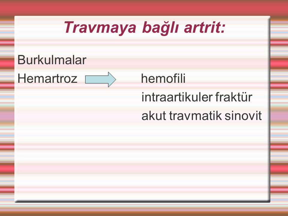 Travmaya bağlı artrit: Burkulmalar Hemartroz hemofili intraartikuler fraktür akut travmatik sinovit