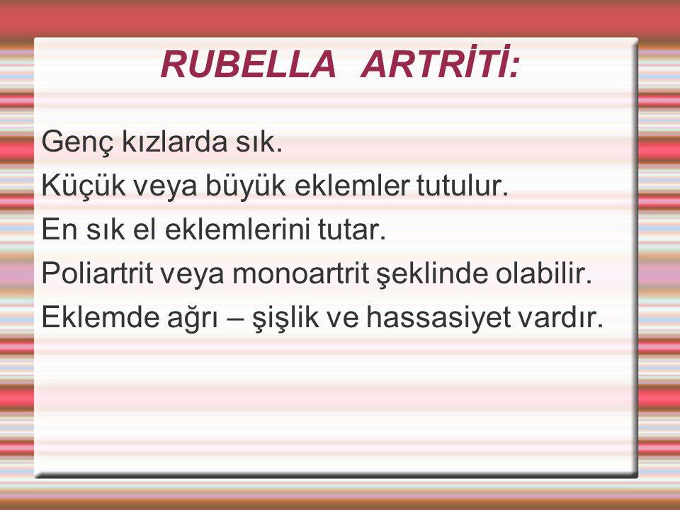 RUBELLA ARTRİTİ: Genç kızlarda sık.Küçük veya büyük eklemler tutulur.