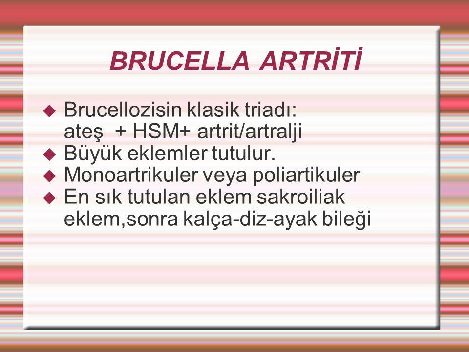 BRUCELLA ARTRİTİ  Brucellozisin klasik triadı: ateş + HSM+ artrit/artralji  Büyük eklemler tutulur.