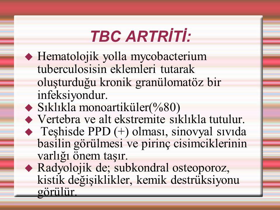 TBC ARTRİTİ:  Hematolojik yolla mycobacterium tuberculosisin eklemleri tutarak oluşturduğu kronik granülomatöz bir infeksiyondur.