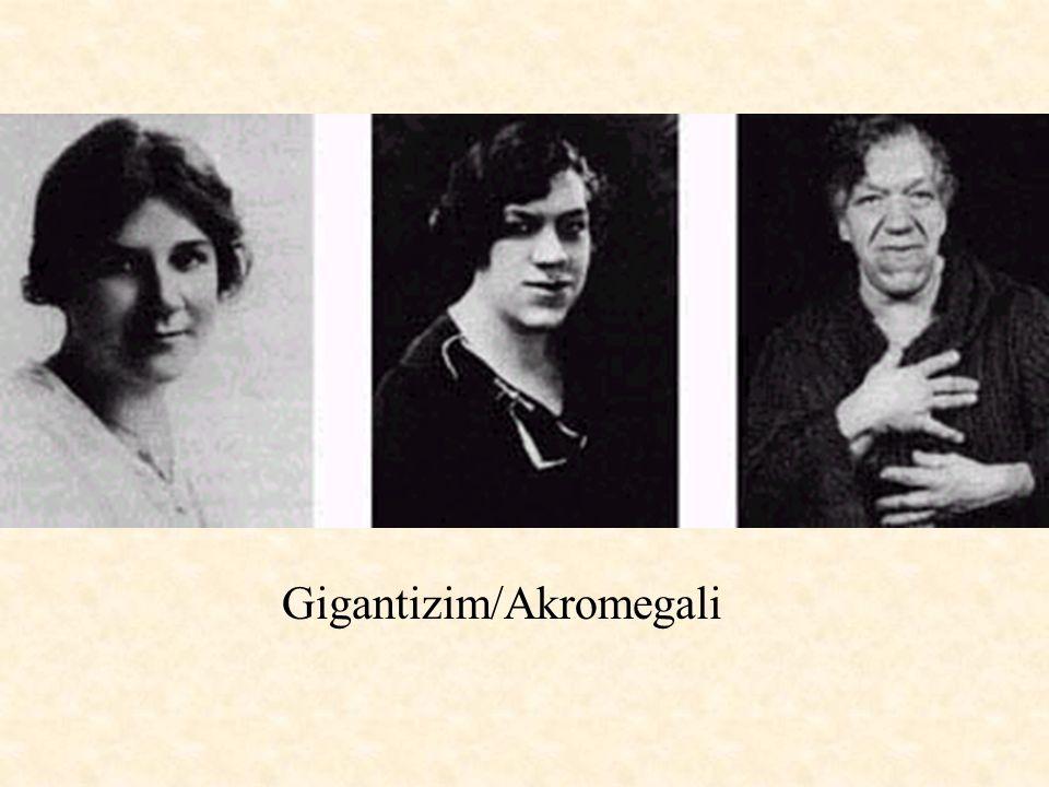 Gigantizim/Akromegali