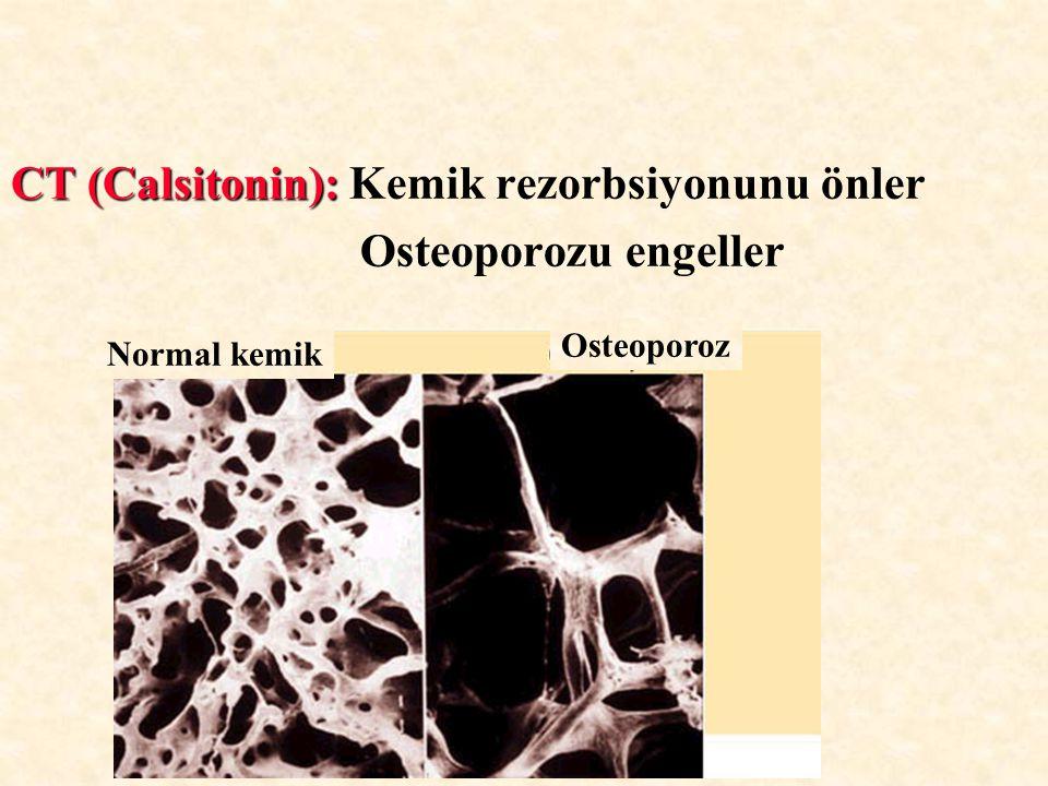CT (Calsitonin): CT (Calsitonin): Kemik rezorbsiyonunu önler Osteoporozu engeller Normal kemik Osteoporoz