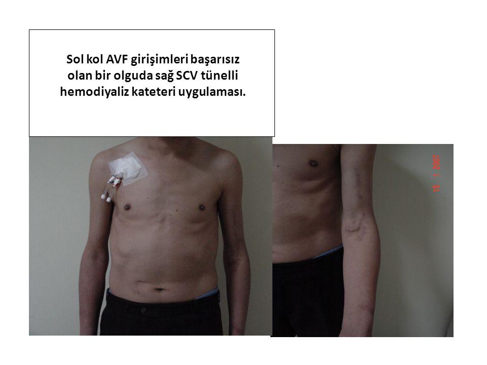 Sol kol AVF girişimleri başarısız olan bir olguda sağ SCV tünelli hemodiyaliz kateteri uygulaması.