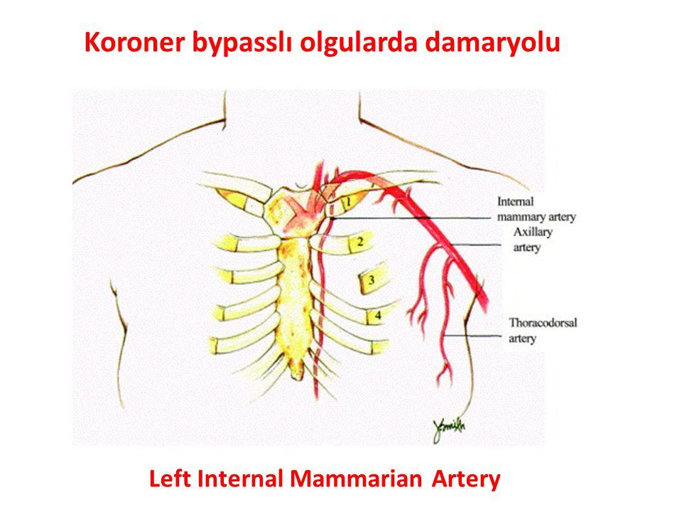 Left Internal Mammarian Artery Koroner bypasslı olgularda damaryolu