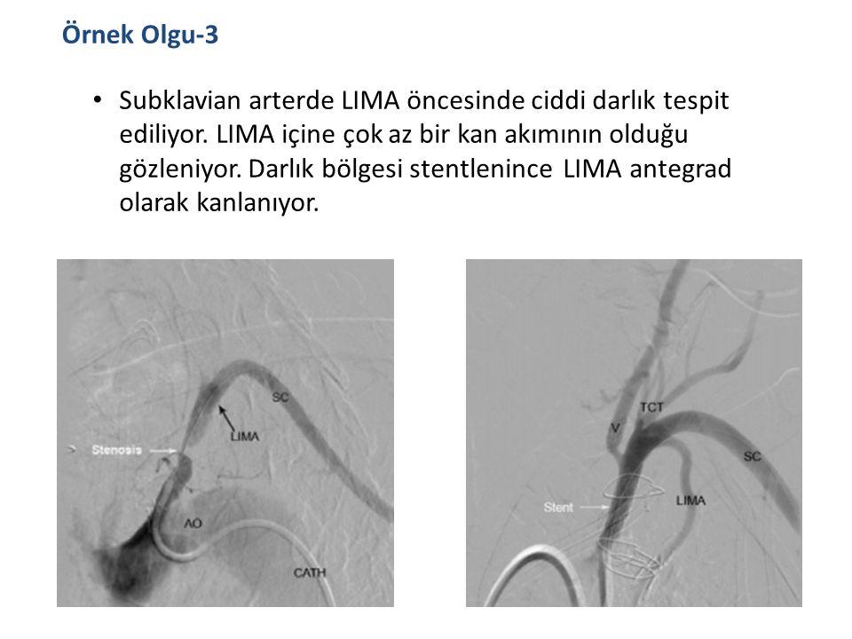 Subklavian arterde LIMA öncesinde ciddi darlık tespit ediliyor. LIMA içine çok az bir kan akımının olduğu gözleniyor. Darlık bölgesi stentlenince LIMA