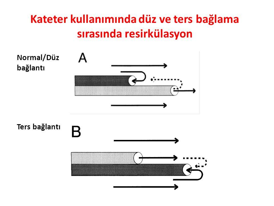 Kateter kullanımında düz ve ters bağlama sırasında resirkülasyon Normal/Düz bağlantı Ters bağlantı