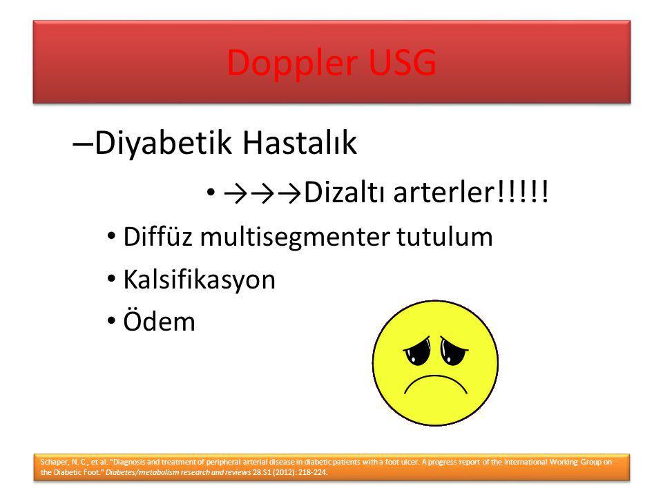 – Diyabetik Hastalık →→→ Dizaltı arterler!!!!! Diffüz multisegmenter tutulum Kalsifikasyon Ödem Schaper, N. C., et al.