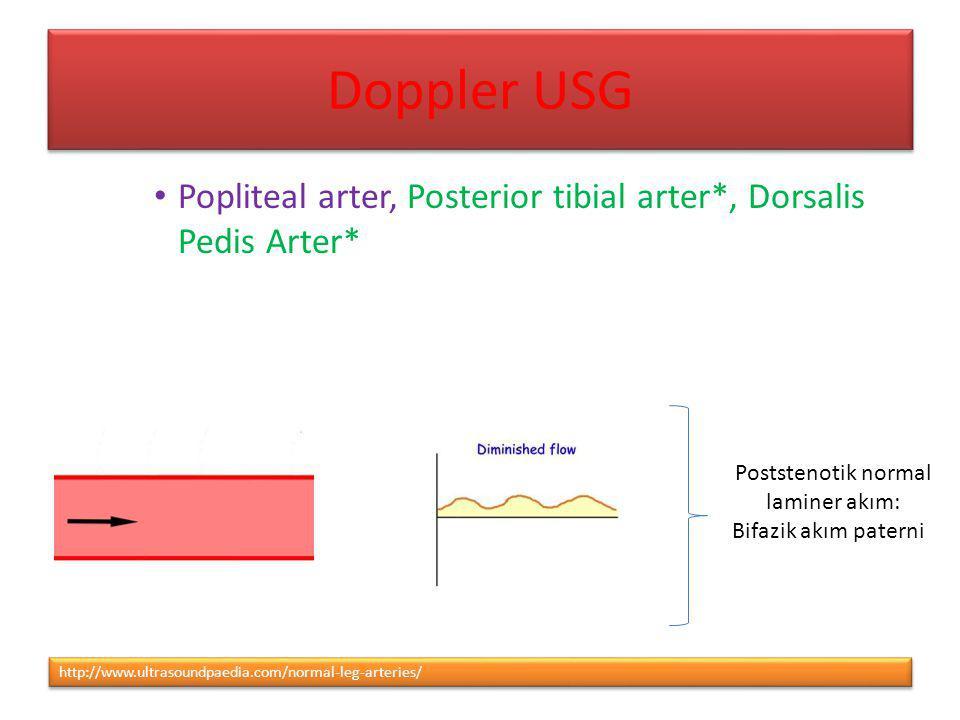 http://www.ultrasoundpaedia.com/normal-leg-arteries/ Popliteal arter, Posterior tibial arter*, Dorsalis Pedis Arter* Poststenotik normal laminer akım: