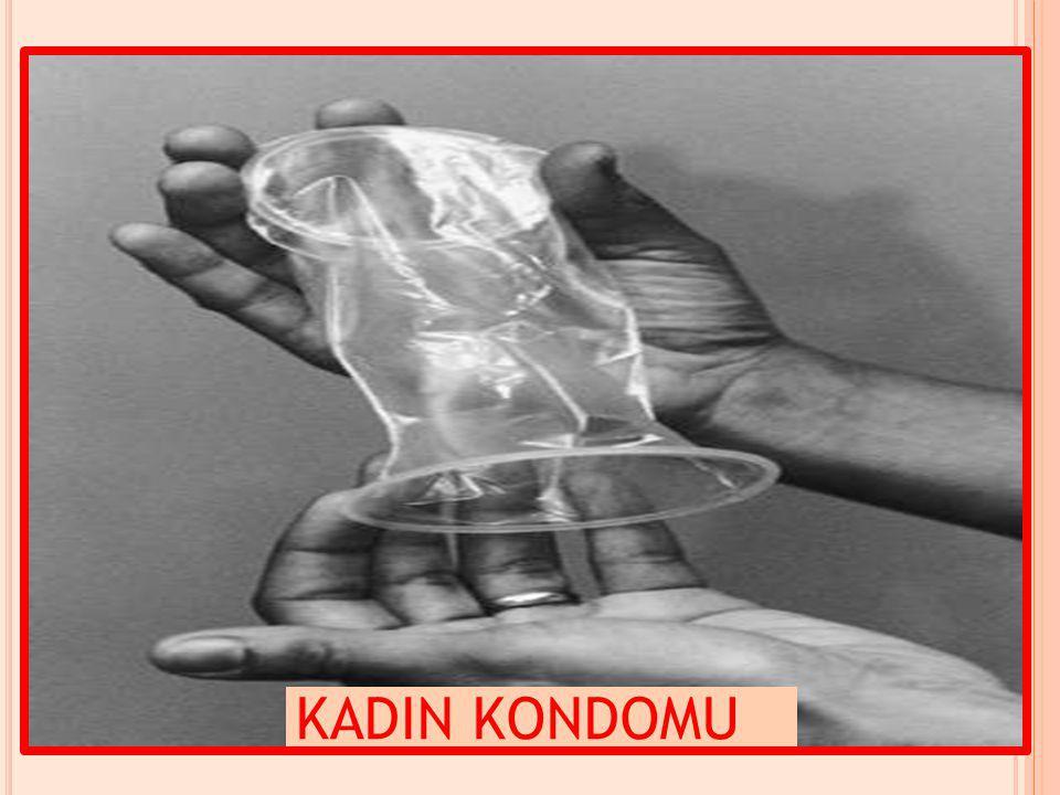 KADIN KONDOMU
