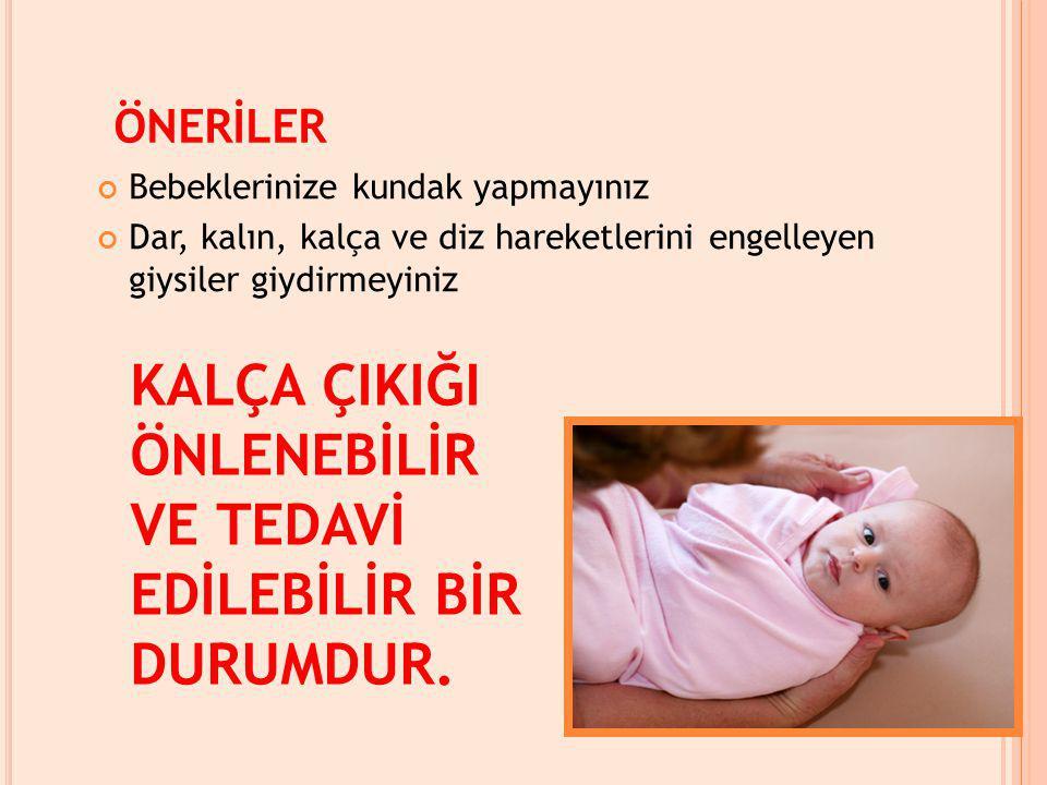 ÖNERİLER Bebeklerinize kundak yapmayınız Dar, kalın, kalça ve diz hareketlerini engelleyen giysiler giydirmeyiniz KALÇA ÇIKIĞI ÖNLENEBİLİR VE TEDAVİ EDİLEBİLİR BİR DURUMDUR.
