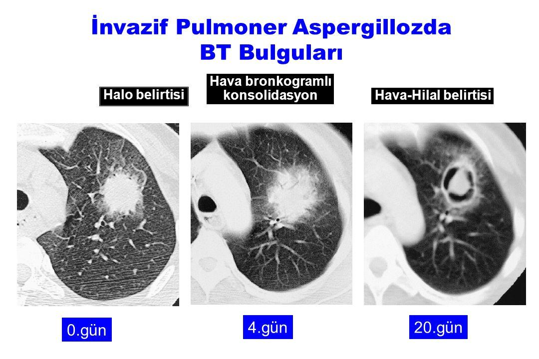 0.gün 4.gün20.gün İnvazif Pulmoner Aspergillozda BT Bulguları Halo belirtisi Hava bronkogramlı konsolidasyon Hava-Hilal belirtisi
