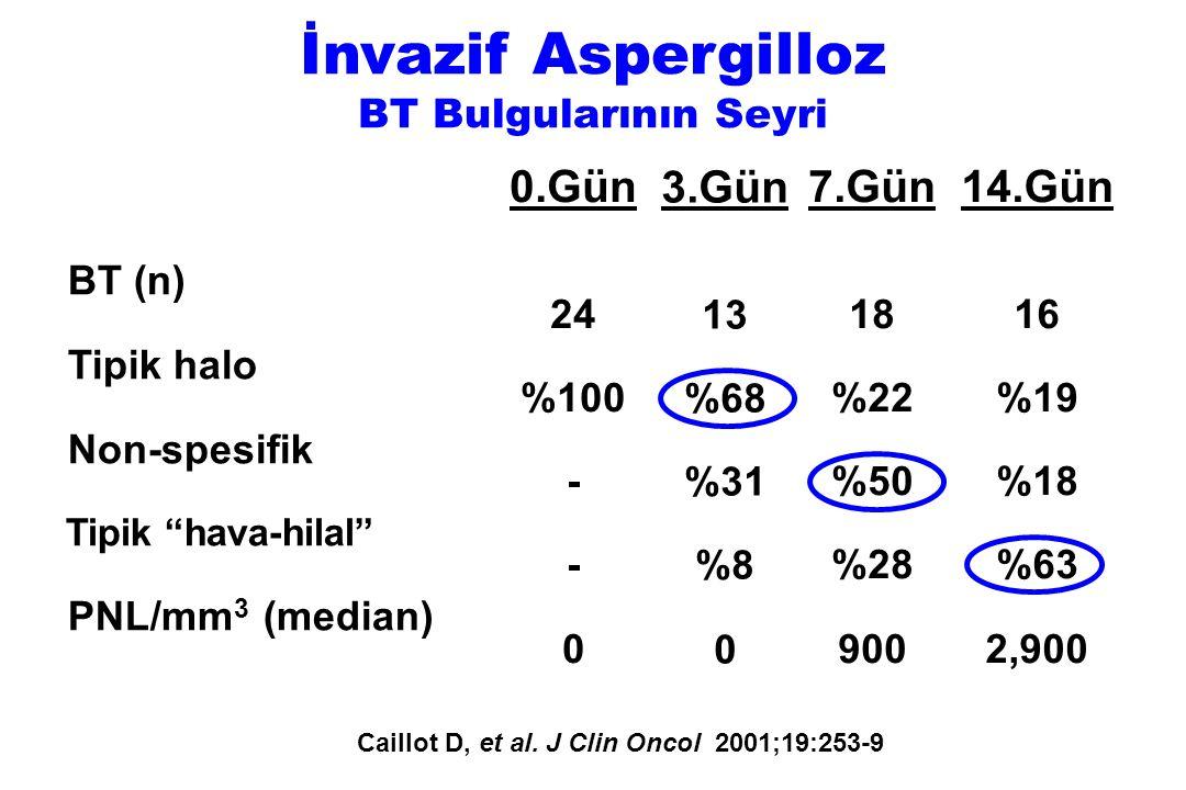 """BT (n) Tipik halo Non-spesifik Tipik """"hava-hilal"""" PNL/mm 3 (median) 0.Gün 24 %100 - 0 3.Gün 13 %68 %31 %8 0 7.Gün 18 %22 %50 %28 900 14.Gün 16 %19 %18"""