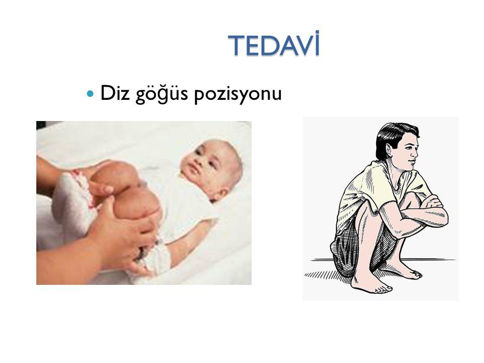TEDAV İ Diz gö ğ üs pozisyonu