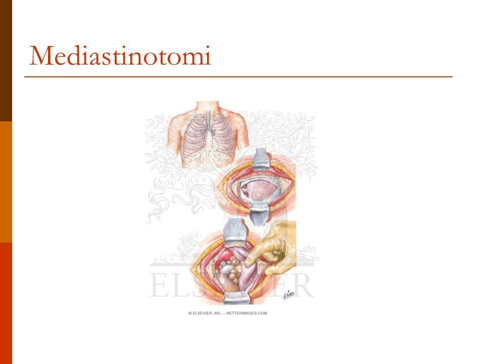 Mediastinotomi