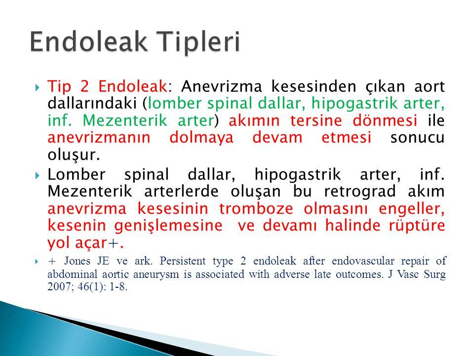  Tip 2 Endoleak: Anevrizma kesesinden çıkan aort dallarındaki (lomber spinal dallar, hipogastrik arter, inf. Mezenterik arter) akımın tersine dönmesi