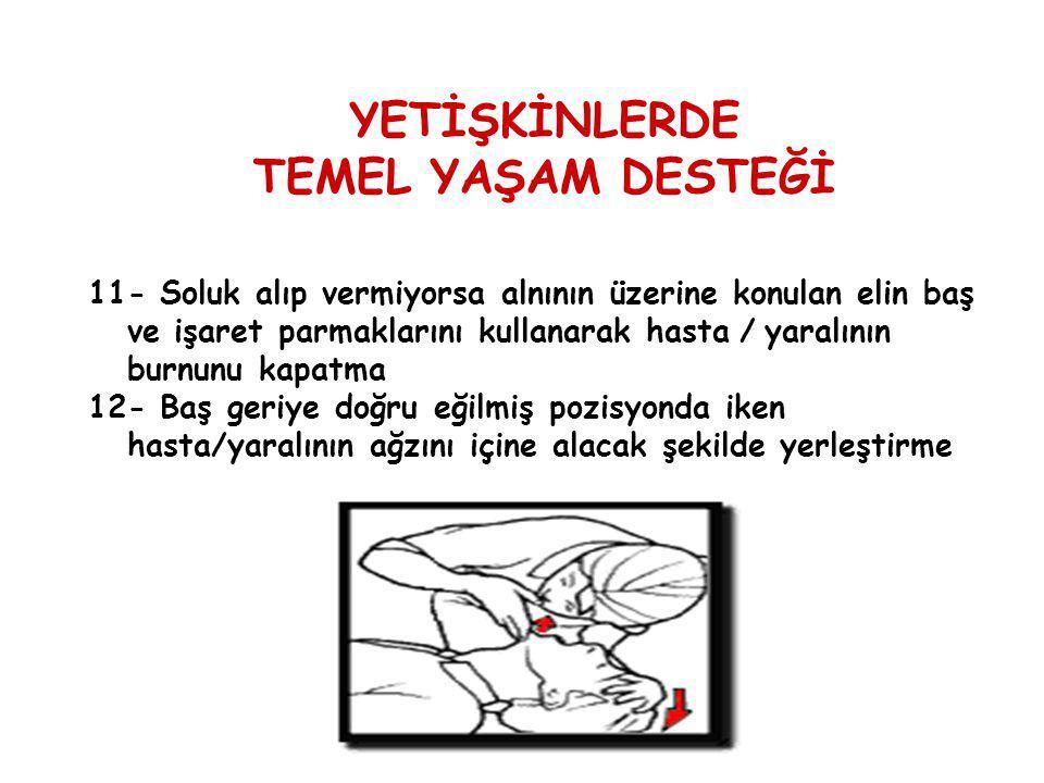 11- Soluk alıp vermiyorsa alnının üzerine konulan elin baş ve işaret parmaklarını kullanarak hasta / yaralının burnunu kapatma 12- Baş geriye doğru eğ