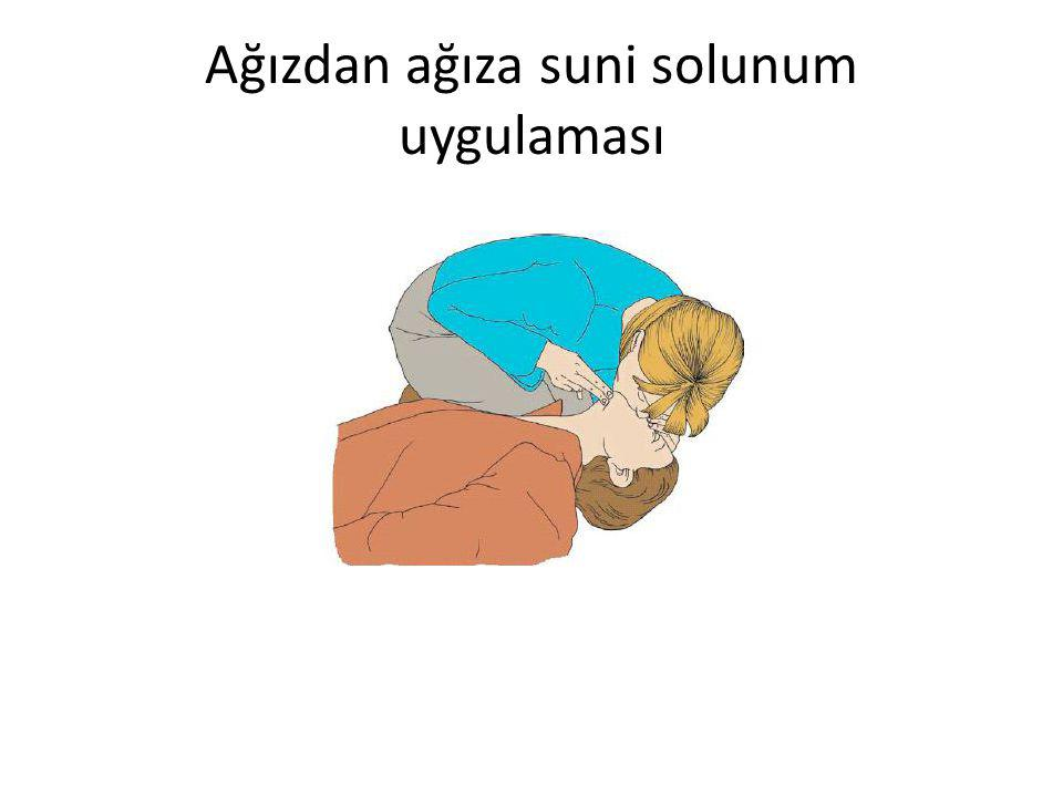 Ağızdan ağıza suni solunum uygulaması