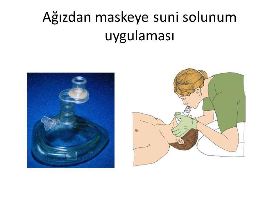 Ağızdan maskeye suni solunum uygulaması