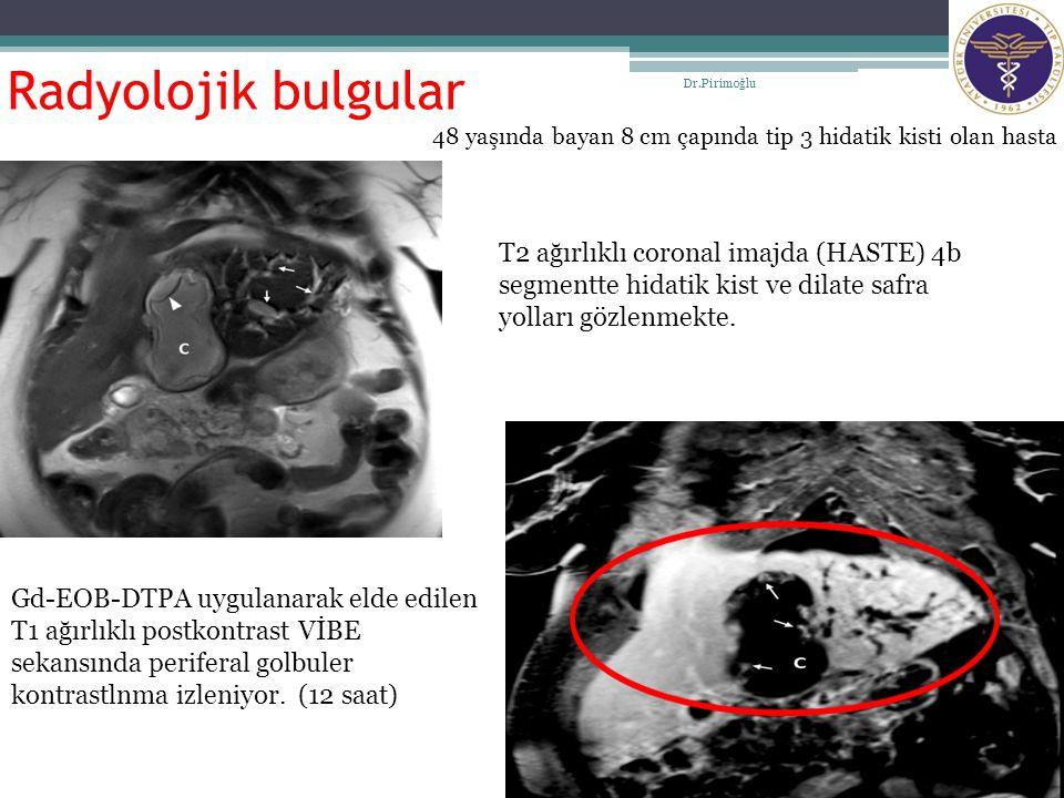 Radyolojik bulgular Dr.Pirimoğlu 14 48 yaşında bayan 8 cm çapında tip 3 hidatik kisti olan hasta T2 ağırlıklı coronal imajda (HASTE) 4b segmentte hida