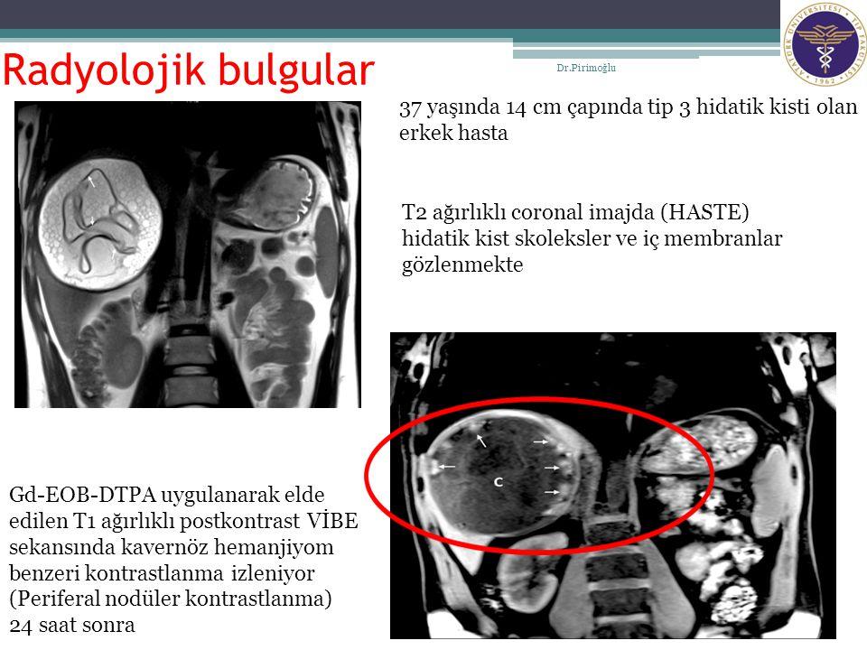 Radyolojik bulgular Dr.Pirimoğlu 15 37 yaşında 14 cm çapında tip 3 hidatik kisti olan erkek hasta T2 ağırlıklı coronal imajda (HASTE) hidatik kist sko
