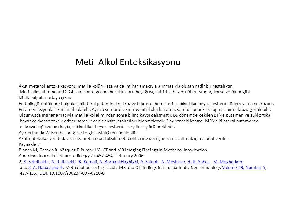 Metil Alkol Entoksikasyonu Akut metanol entoksikasyonu metil alkolün kaza ya da intihar amacıyla alınmasıyla oluşan nadir bir hastalıktır. Metil alkol