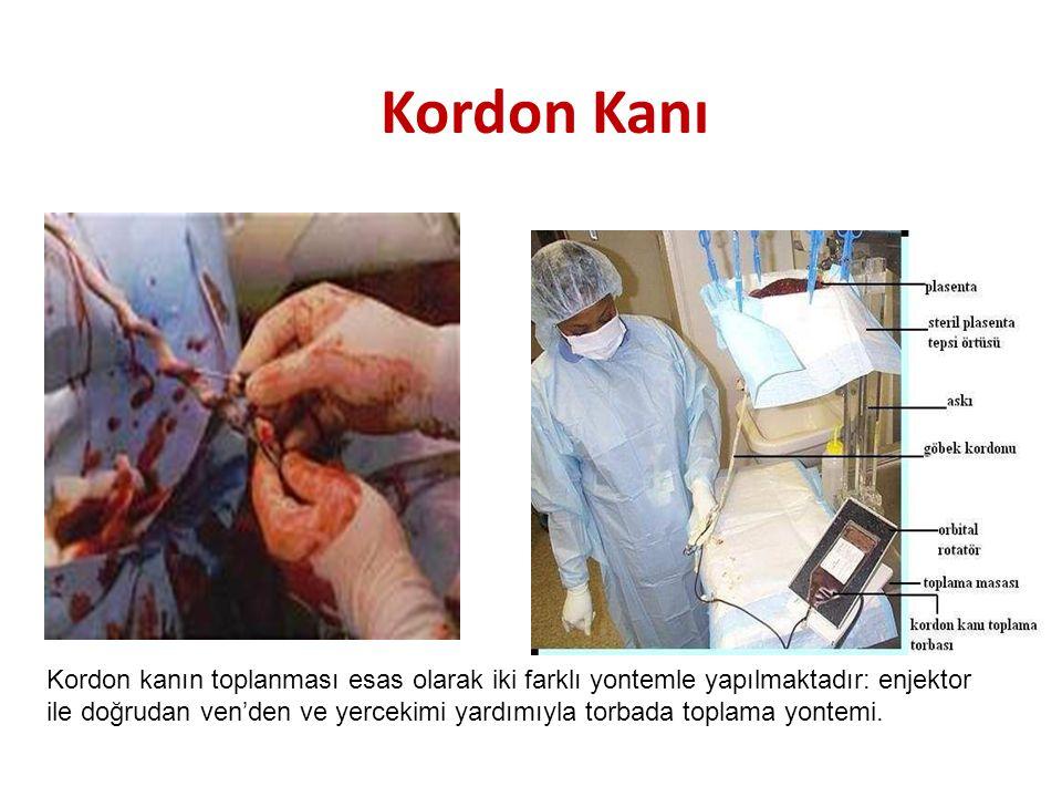 Kordon Kanı Kordon kanın toplanması esas olarak iki farklı yontemle yapılmaktadır: enjektor ile doğrudan ven'den ve yercekimi yardımıyla torbada topla