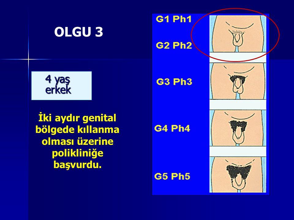 OLGU 3 4 yaş erkek İki aydır genital bölgede kıllanma olması üzerine polikliniğe başvurdu.