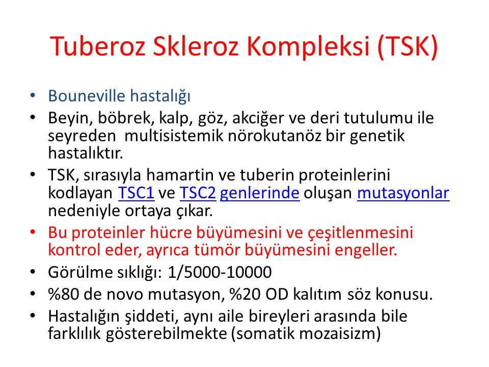 Tuberoz Skleroz Kompleksi (TSK) Bouneville hastalığı Beyin, böbrek, kalp, göz, akciğer ve deri tutulumu ile seyreden multisistemik nörokutanöz bir genetik hastalıktır.