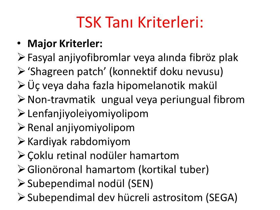 TSK Tanı Kriterleri: Major Kriterler:  Fasyal anjiyofibromlar veya alında fibröz plak  'Shagreen patch' (konnektif doku nevusu)  Üç veya daha fazla hipomelanotik makül  Non-travmatik ungual veya periungual fibrom  Lenfanjiyoleiyomiyolipom  Renal anjiyomiyolipom  Kardiyak rabdomiyom  Çoklu retinal nodüler hamartom  Glionöronal hamartom (kortikal tuber)  Subependimal nodül (SEN)  Subependimal dev hücreli astrositom (SEGA)