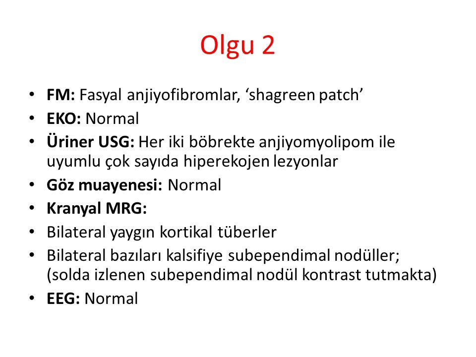 Olgu 2 FM: Fasyal anjiyofibromlar, 'shagreen patch' EKO: Normal Üriner USG: Her iki böbrekte anjiyomyolipom ile uyumlu çok sayıda hiperekojen lezyonlar Göz muayenesi: Normal Kranyal MRG: Bilateral yaygın kortikal tüberler Bilateral bazıları kalsifiye subependimal nodüller; (solda izlenen subependimal nodül kontrast tutmakta) EEG: Normal
