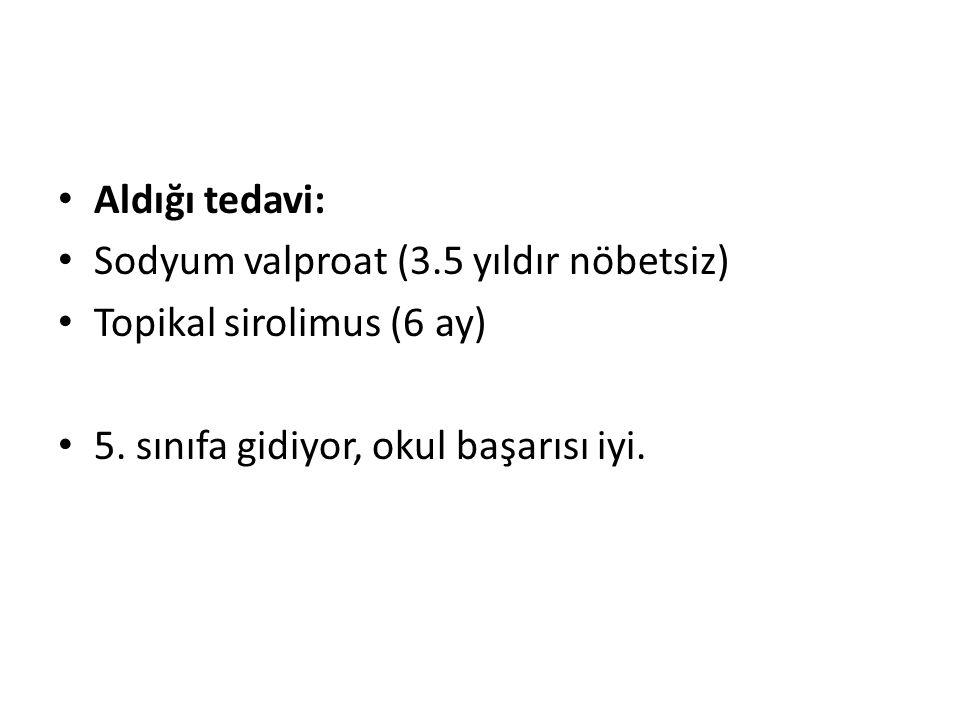 Aldığı tedavi: Sodyum valproat (3.5 yıldır nöbetsiz) Topikal sirolimus (6 ay) 5.