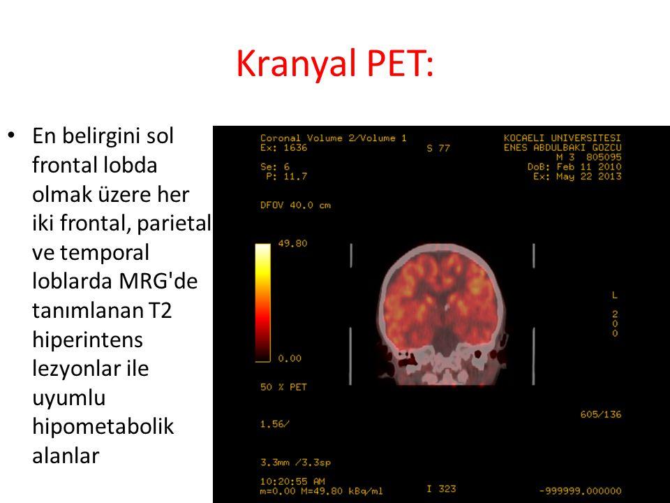 Kranyal PET: En belirgini sol frontal lobda olmak üzere her iki frontal, parietal ve temporal loblarda MRG de tanımlanan T2 hiperintens lezyonlar ile uyumlu hipometabolik alanlar