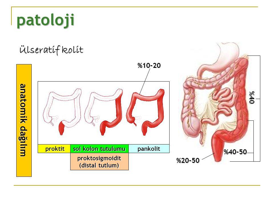 patoloji Ülseratif kolit anatomik dağılım proktitpankolit sol kolon tutulumu %20-50 %40-50 %40-50 %40 proktosigmoidit (distal tutlum) %10-20