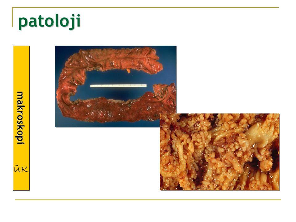 makroskopi patoloji ÜK