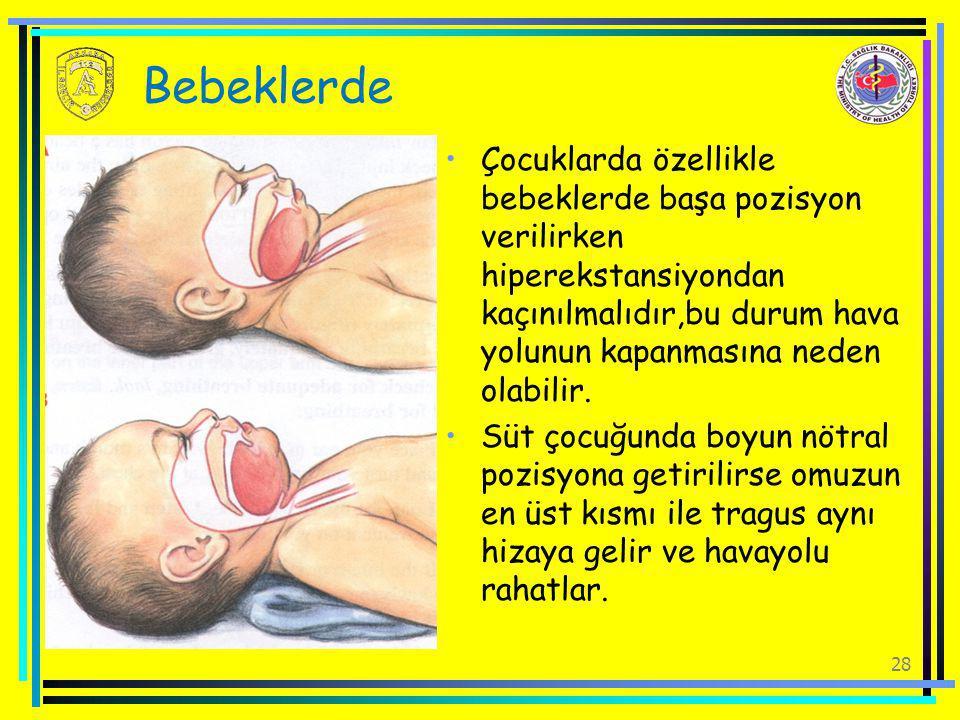28 Bebeklerde Çocuklarda özellikle bebeklerde başa pozisyon verilirken hiperekstansiyondan kaçınılmalıdır,bu durum hava yolunun kapanmasına neden olab