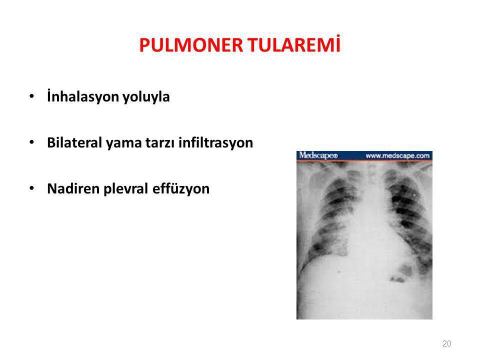 PULMONER TULAREMİ İnhalasyon yoluyla Bilateral yama tarzı infiltrasyon Nadiren plevral effüzyon 20