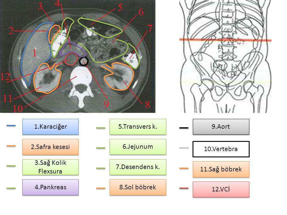 1.Karaciğer 2.Safra kesesi 3.Sağ Kolik Flexsura 4.Pankreas 5.Transvers k. 6.Jejunum 7.Desendens k. 8.Sol böbrek 9.Aort 11.Sağ böbrek 12.VCİ 10.Vertebr