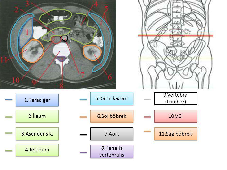 1.Karaciğer 2.İleum 3.Asendens k. 4.Jejunum 5.Karın kasları 6.Sol böbrek 7.Aort 8.Kanalis vertebralis 9.Vertebra (Lumbar) 10.VCİ 11.Sağ böbrek